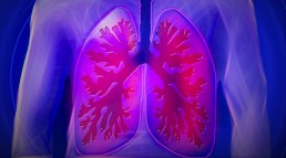 Women and Lung Cancer